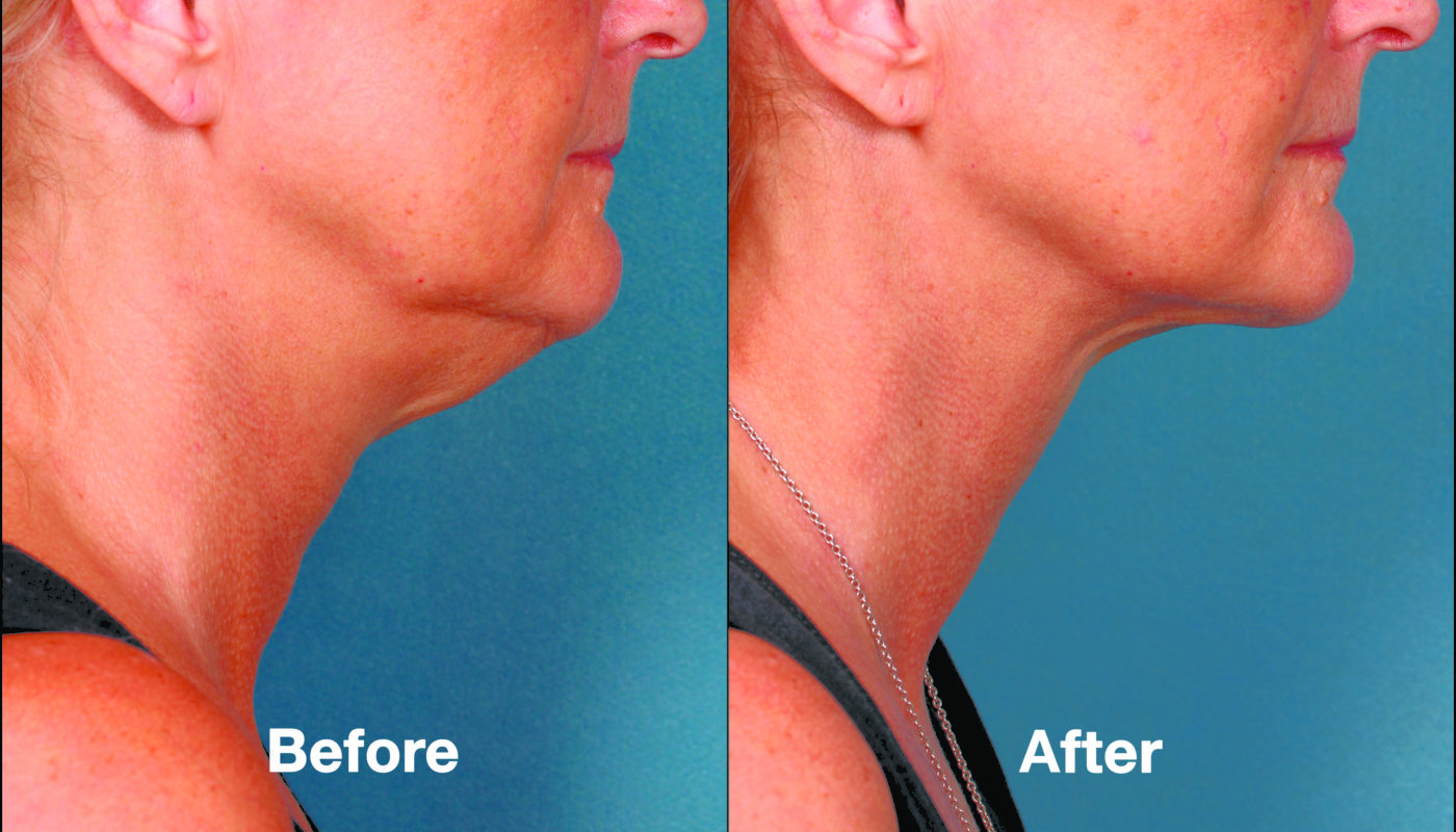 Get Rid of Your Double Chin!