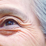 What to Expect from Cataract Surgery