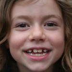 little girl missing teeth