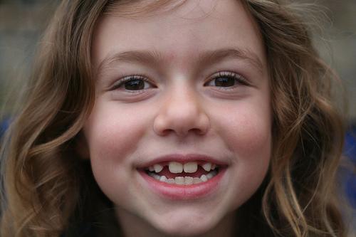 Little Girl Missing Teeth - Hot Girls Wallpaper